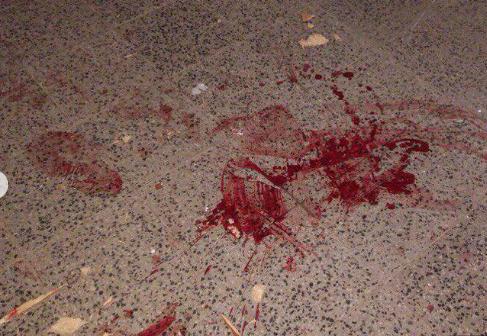 Кровавая бойня в российской военной части. Появились фото месива