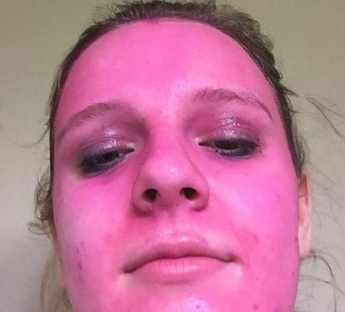 """В стиле """"розовой пантеры"""": молодая американка ради эксперимента испортила свое лицо"""